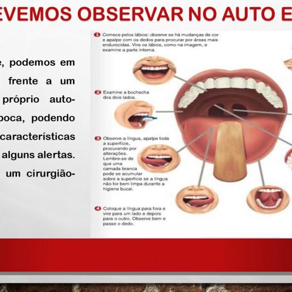 cancer bucal como prevenir)
